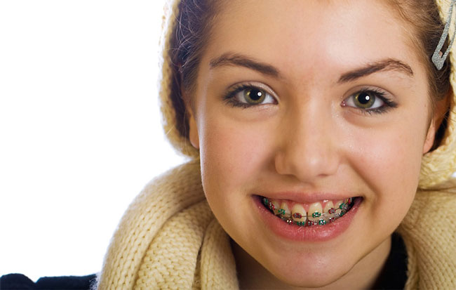 Orthodontic-Children.jpg